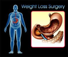 Weight Loss in Bangalore - lapsurg.in is the best weigh loss centre in Bangalore. Dr Saurabh Misra is the well experienced bariatric surgeon in Bangalore. Healthy Ways To Lose Weight Fast, Fast Weight Loss, Weight Loss Plans, Get Healthy, Losing Weight, Weigh Loss, Weight Loss Surgery, Medical Care, The Help