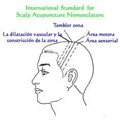 Acupuntura en el cuero cabelludo según el método del Dr. Zhu. Tlahui - Medic No. 31, I/2011