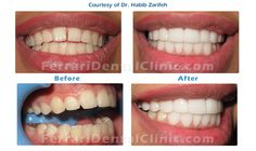 The Best Hollywood smile dentist in Beirut Lebanon Dr.Habib Zarifeh. Our services includes: Hollywood smile, dentist, dental clinic, veneers, lumineers, teeth whitening, Laser bleaching, Laser dentistry, hospital, Beirut, Lebanon, gum,plastic, surgery, gummy smile, plastic surgery, Hollywood smile Lebanon, Hollywood smile Beirut, veneers Lebanon. Call us ow: +96170567444 (WhatsApp...) http://www.veneersbeirutlebanon.com