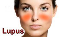 As 8 Dicas Para Tratar Lúpus em Casa!    #dicasdebeleza  #saude  #dicasdesaude  #receitas  #receitasparalupus  #tratamentosnaturais  #tratamentocaseiro  #receitacaseira  #receitasnaturais  #receitascaseiras  #dicasdemulher  #lupus  #tratarlupus  #remedioparalupus Natural Treatments, Homemade Recipe, Health Tips, Beauty Tips, Recipes, Home