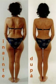 Cura care dureaza 5 zile si in care care slabesti 4 kg - BZI. Cellulite Exercises, Cellulite Remedies, Lose Cellulite, Natural Health Remedies, Body Inspiration, Loose Weight, Butt Workout, Diet And Nutrition, Fett
