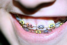 Who knew there's a Wiki entry on eating with braces? Check out these tips: wikiHow to Eat Food With New or Tightened Braces -- via wikiHow.com, then find more in The Braces Cookbooks at www.MetalMouthMedia.net