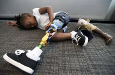 Miyah Williams, 3, rests while wearing her prosthetic leg in Washington on Oct. 23, 2015.