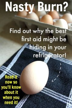 Eggs as first aid for burns? I tried this and it worked great,