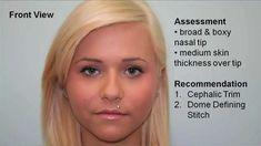 Tip Refinement & Hump Reduction Rhinoplasty with Cephalic Margin Trim, D...