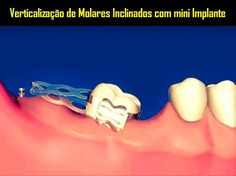 Verticalização de Molares Inclinados com mini Implante   Odonto-TV