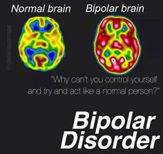 """"""" """"Just because you don't see it, don't mean it don't exist"""" """" That statement can apply to more than just brain/mental disorders. Bipolar Depression Disorder, Bipolar Disorder Quotes, Bipolar Quotes, Living With Bipolar Disorder, Bipolar Humor, Panic Disorder, Anxiety Disorder, Bipolar Symptoms, Mental Health"""