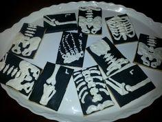X Ray cookies