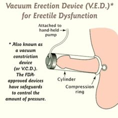 How does vacuum erection device work? Finally I found one Erectile Dysfunction natural remedy that truly works! http://brookereviews.com/product/e-d-protocol-jason-long-last-solution-truly-works/ #ErectileDysfunction #ErectileDysfunction Protocol #ErectileDysfunctioncure