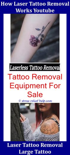 Maret 2019 ~ Every Tattoo Removal