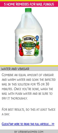 5 home remedies for nail fungus - Water and vinegar