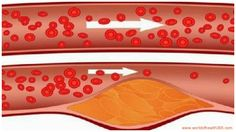 Take 4 Tablespoons Each Morning Of This Drink And Say Goodbye To Clogged Arteries, High Blood Pressure, And Bad Cholesterol! - http://worldofhealth365.com/2016/04/take-4-tablespoons-each-morning-of-this-drink-and-say-goodbye-to-clogged-arteries-high-blood-pressure-and-bad-cholesterol/