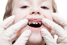 Apakah anak anda sangat suka sekali mengkonsumsi permen coklat dan makanan yang serba manis? lalu bagaimana dengan keadaan giginya? Saat ini sangat jarang ditemukan kondisi gigi anak yang bersih dan sehat tanpa adanya gigi berlubang. Gigi anak yang berlubang merupakan salah satu masalah kesehatan anak yang sering sekali dihadapi para orang tua. Pasalnya keadaan gigi anak berlubang mampu membuat khawatir dan stres para orang tua apalagi bila keadaan gigi anak itu sudah berubah warna menjadi…