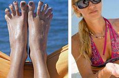 Huile de bronzage ou écran total à la plage cet été ? Peau bronzée ou teint de porceleine, à chacun son résultat à la fin de l'été !
