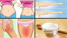 Baking Soda to Burn Belly Fat, Thigh and Back Fat Belly Fat Burner, Burn Belly Fat, Équilibrer Les Hormones, Sumo Natural, Weight Gain, Weight Loss, Back Fat, Herbal Remedies, Natural Remedies