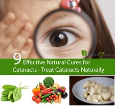 Natural cures for cataracts are the best ways to treat the problem effectively. It helps to get rid of redness and irritation problem in safe manner.