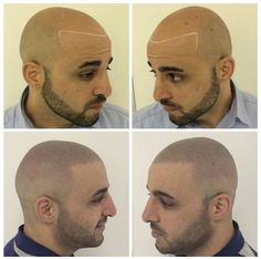 Before / After SMP hairloss treatment with Skalp UK see more at: www.skalp.com #scalpmicropigmentation #skalp #hairloss #tattoo #shaved #menshairstyles #hairloss #solution