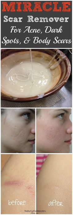 Miracle Homemade Scar Remover for Acne and Dark Spots..
