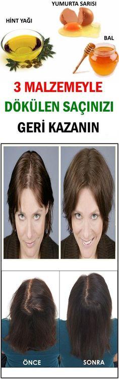 3 Malzemeyle Dökülen Saçınızı Geri Kazanın - Skin Care World Grey Hair Care, Blonde Hair Care, Hair Care Brands, Hair Care Tips, Pelo Natural, Homemade Skin Care, Hair Loss Treatment, Skin Treatments, Natural Skin Care