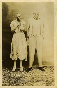 """Kiko & Sulu from Zanzibar"" sideshow microcephalic ""pinheads"" promotional postcard from early 1900s"