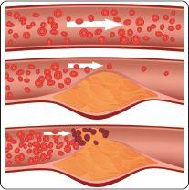 Verstopfte Arterien