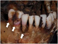 """""""Pink Tooth"""" is a common finding in postmortem examinations of asphyxia victims"""