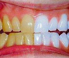 This Turmeric Anti-Inflammatory Paste Will Reverse Gum Disease, Swelling, And Kill Bacteria - Healthy Holistic Living Teeth Whitening Remedies, Natural Teeth Whitening, Natural Toothpaste, Turmeric Anti Inflammatory, Detox Your Liver, Healthy Holistic Living, Gum Health, Oral Health, Stained Teeth