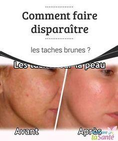 Comment faire disparaître les taches brunes ?   Beaucoup #souffrent des #taches brunes qui #apparaissent sur la peau du #corps ou du visage ! Venez découvrir nos astuces pour vous en débarrasser.  #Beauté