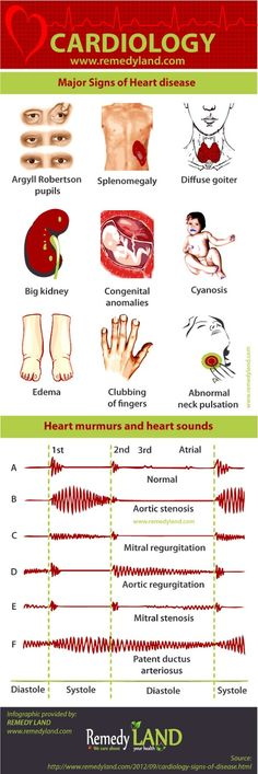 Cardiology: signs of heart disease, heart murmurs and heart sounds