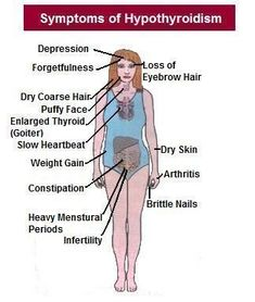 These are symptoms that I had for over 15 years and no one caught until an OB/GYN found  Cancer.  Symptoms Thyroid Problem Woman | Symptoms Of Underactive Thyroid In Women | autoimmunedisease-s.com #Dietsforanunderactivethyroid #thyroidcancersymptoms #underactivethyroidsymptoms #thyroidsymptoms #symptomsofthyroidproblems