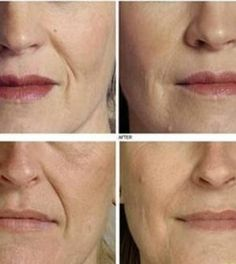 Dörzsöld ezt a fűszert az arcodba és nem kell többé ránctalanító! Wrinkled Skin, Les Rides, Beauty Cream, Homemade Skin Care, Facial Care, Skin Care Tips, Natural Skin Care, Health And Beauty, Beauty Hacks