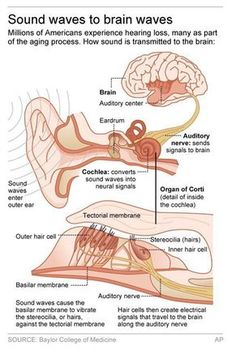 Func of both ear muscles contract dampen effect of loud sound washington ap treating hearing loss shouldnt be such a pricey hassle thats the message from a prestigious government advisory group thats calling on ccuart Images