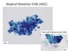 Image result for atypical glandular cells
