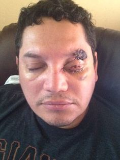 Who's your Uber driver? via Roberto Chicas may lose eye after 'attack with hammer by Uber cab driver' | Daily Mail Online. A passenger may lose his eye after being hit with a hammer by an Uber cab ...