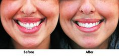 For people who are self-conscious about showing their gums every time they smile, there is a solution.  A small amount of Botox can help hide the gums without changing the shape of your smile.