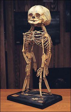 SALE 20% off Conjoined Twins Siamese Fetal Skeletons. $379.00, via Etsy.