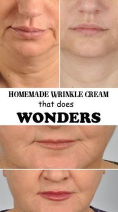 Homemade wrinkle cream that does wonders - Best 101 Beauty Tips #homemadewrinklecreamsbeauty