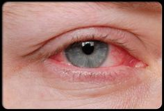 Home remedies for itchy eyes relief. How to treat itchy eyes naturally at home? How to treat sore eyes naturally home remedy Natural Home Remedies, Herbal Remedies, Health Remedies, Red Eyes, Pink Eyes, Puffy Eyes, Home Health, Health Tips, Health Care