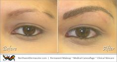 """This """"Before and After"""" shows our """"Feather-Stroke"""" eyebrow enhancement. See more at NorthwestDermacolor.com"""