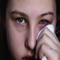 EFFECTIVE REMEDIES FOR PINK EYE