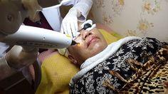 Laser for Melasma