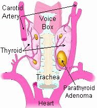 Parathyroid disease is caused by a parathyroid tumor making too much parathyroid hormone.