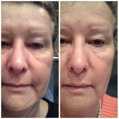 My sister in laws left side real results in just 9 weeks! What are you waiting for? Contact me to start your own results today! www.YPhelps.nerium.com