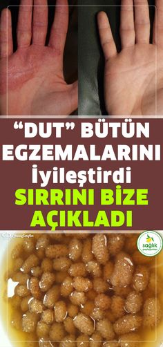 Dutu böyle kullandı bütün egzemalarından kurtuldu, sırrını bizle paylaş… He used mulberry like that and got rid of all the eczema and shared his secret with us. What is good for eczema? Natural Medicine, Herbal Medicine, Herbal Remedies, Natural Remedies, Healthy Life, Healthy Living, Health Images, New Inventions, Natural Lifestyle