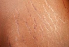 What are Stretch marks. They occur when skin stretches much quicker than regular. When this occurs the collagen and elastin in the skin, cant produce. Stretch Mark Treatment, Stretch Mark Remedies, Stretch Mark Removal, White Stretch Marks, Prevent Stretch Marks, How To Get Rid, How To Remove, Cellulite Remedies, Stricken