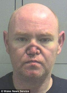 Millionaire property dealer James Brown from Glasgow, has a collapsed nose due to cocaine addiction