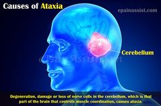 Image result for Ataxia – One of Many Causes of Falling