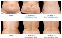 Kill Fat Cells Instantly Just By Freezing Them! – Mr P Weight loss Kill Fat Cells Instantly Just By Freezing Them! Kill Fat Cells Instantly Just By Freezing Them! Freezing Fat Cells, Fat Freezing At Home, Coolsculpting Before And After, Cool Sculpting, Burn Belly Fat Fast, Diet Plan Menu, Fast Metabolism, Liposuction, How To Lose Weight Fast