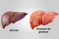 Dieta para gordura no fígado