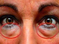 The best natural treatments to remove dark circles and bags under the eyes. Some people are more likely than others to have dark circles or puffiness in . Eye Circles, Dark Circles, Natural Treatments, Natural Remedies, Under Eye Bags, Blackhead Remover, Tips Belleza, Skin Care Tips, Beauty Hacks